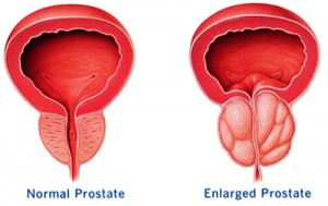 Vergrote-prostaat